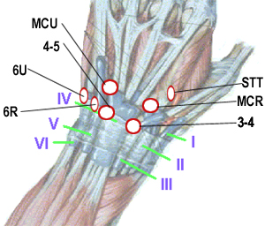 Schematic demonstrating typical position of commonly used wrist arthroscopy portals