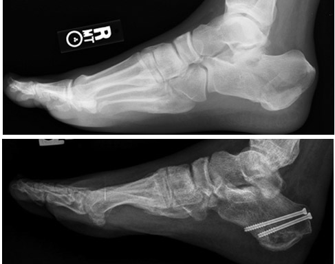 A Patient's Guide to Ankle Arthroscopy | Singapore Sports and.