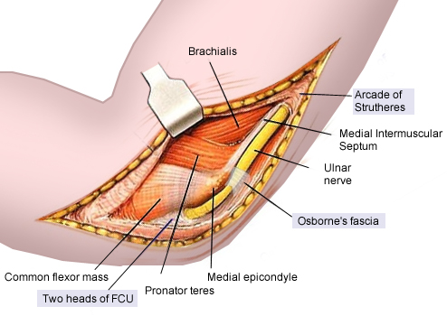Cubital Tunnel Syndrome Hand Orthobullets