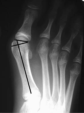 Hallux Valgus - Foot & Ankle - Medbullets Step 1