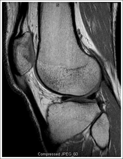 Patellar Tendinitis Knee Sports OrthobulletsQuadriceps Tendon Pain